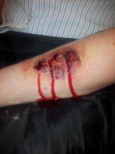 arm bite