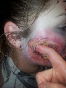 finger in scar